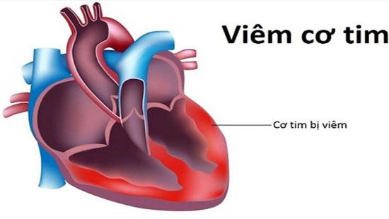 """Không có bệnh truyền nhiễm mang tên """"viêm cơ tim do vi rút"""""""